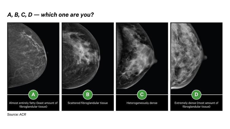 Breast Density_CureMetrix (1)