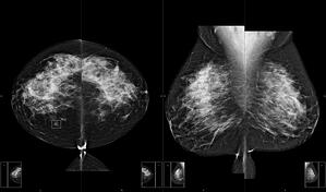 dense breast image no data